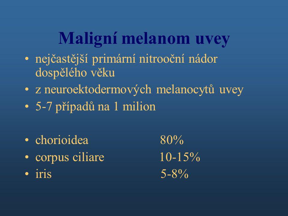 Maligní melanom uvey nejčastější primární nitrooční nádor dospělého věku z neuroektodermových melanocytů uvey 5-7 případů na 1 milion chorioidea 80% corpus ciliare 10-15% iris 5-8%
