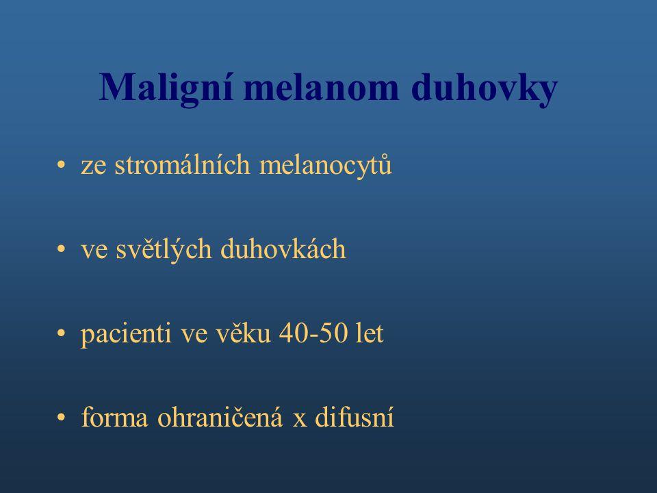 Maligní melanom duhovky ze stromálních melanocytů ve světlých duhovkách pacienti ve věku 40-50 let forma ohraničená x difusní