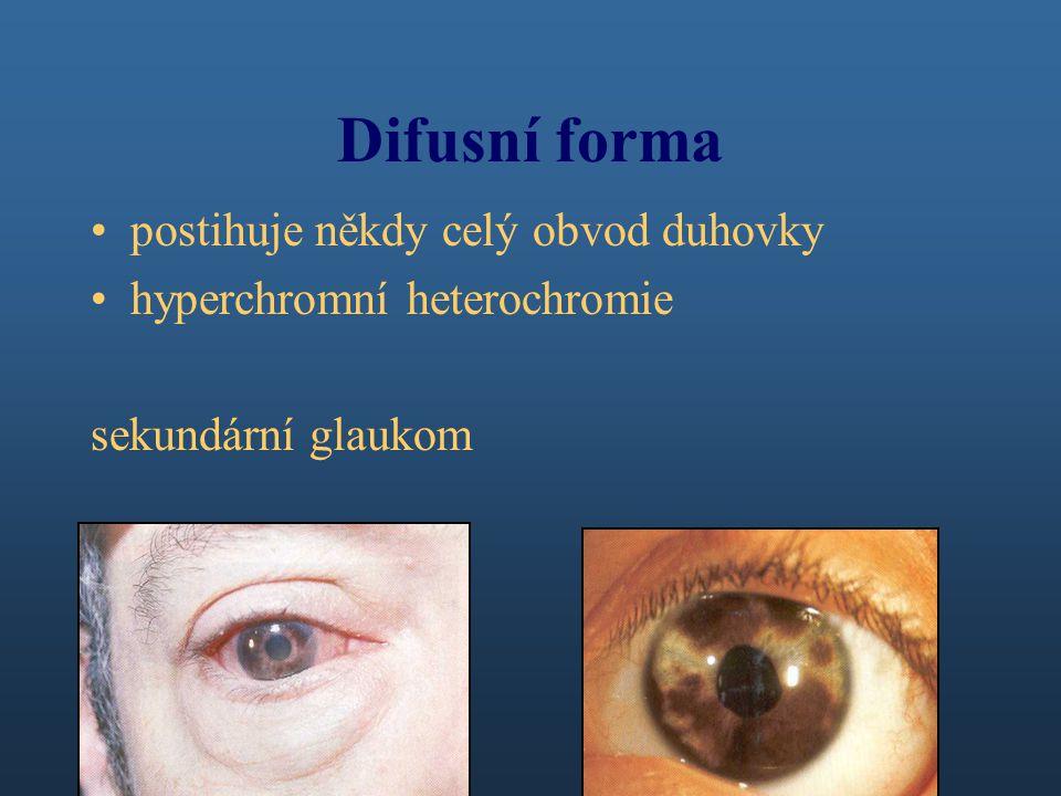 Difusní forma postihuje někdy celý obvod duhovky hyperchromní heterochromie sekundární glaukom
