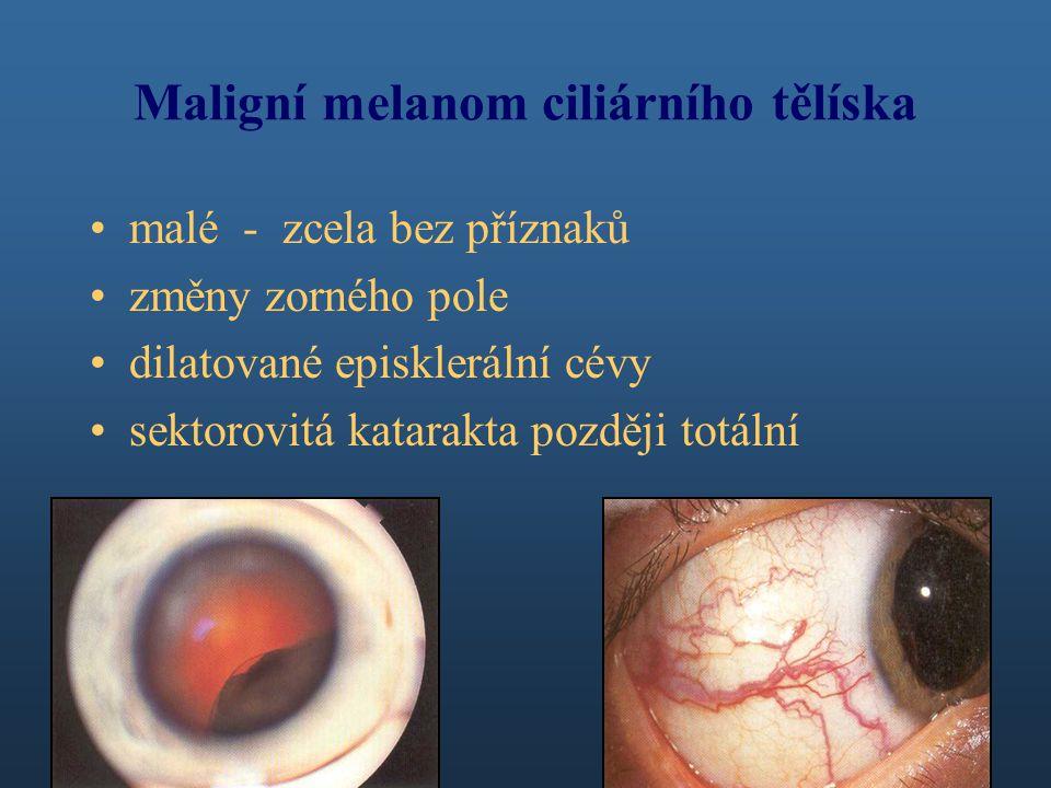 Maligní melanom ciliárního tělíska malé - zcela bez příznaků změny zorného pole dilatované episklerální cévy sektorovitá katarakta později totální