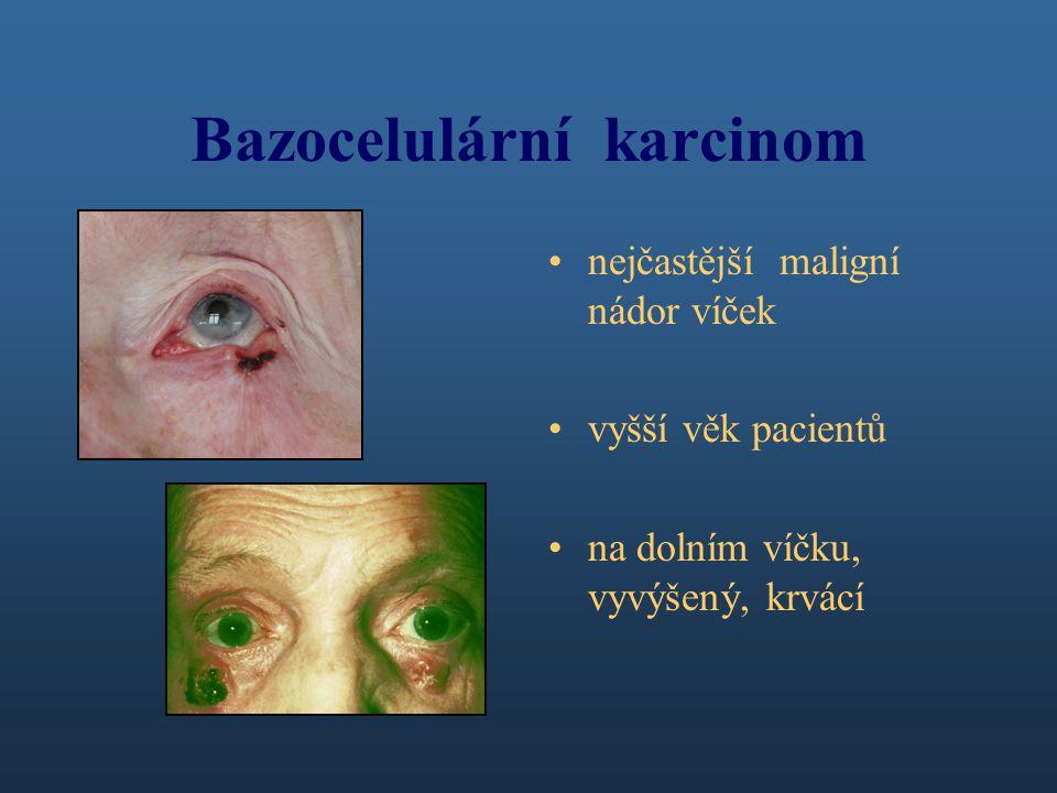 Bazocelulární karcinom nejčastější maligní nádor víček vyšší věk pacientů na dolním víčku, vyvýšený, krvácí