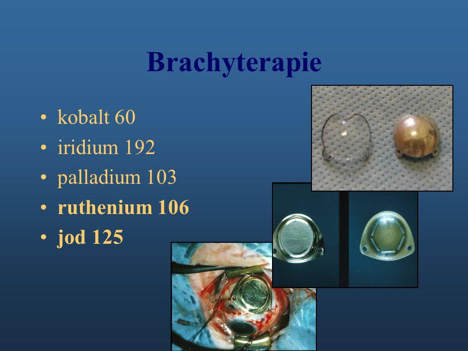 Brachyterapie kobalt 60 iridium 192 palladium 103 ruthenium 106 jod 125