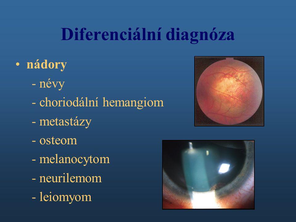 Diferenciální diagnóza nádory - névy - choriodální hemangiom - metastázy - osteom - melanocytom - neurilemom - leiomyom