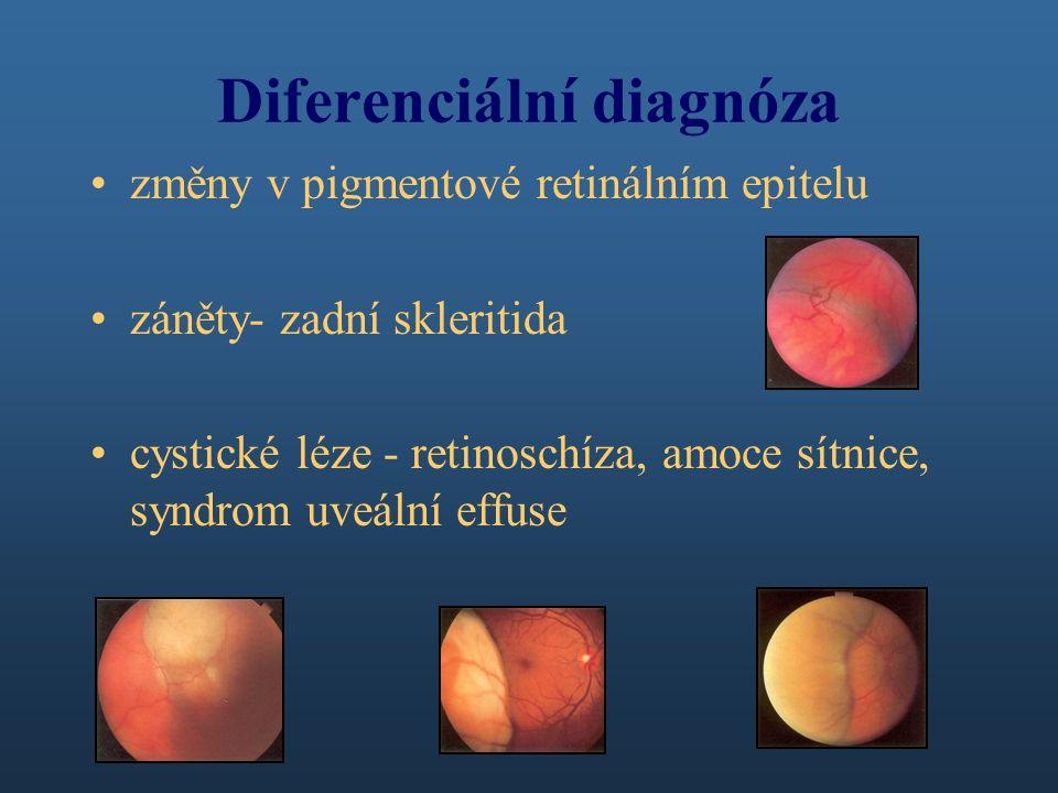 Diferenciální diagnóza změny v pigmentové retinálním epitelu záněty- zadní skleritida cystické léze - retinoschíza, amoce sítnice, syndrom uveální effuse