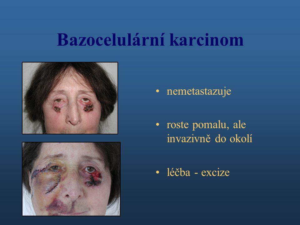 Bazocelulární karcinom nemetastazuje roste pomalu, ale invazivně do okolí léčba - excize