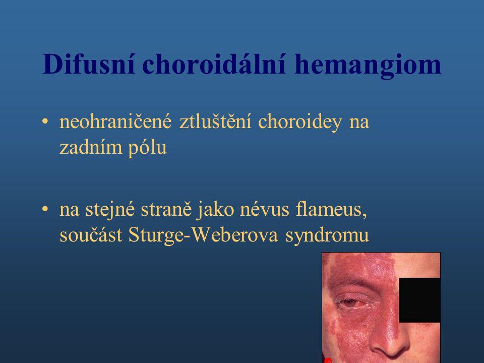 Difusní choroidální hemangiom neohraničené ztluštění choroidey na zadním pólu na stejné straně jako névus flameus, součást Sturge-Weberova syndromu