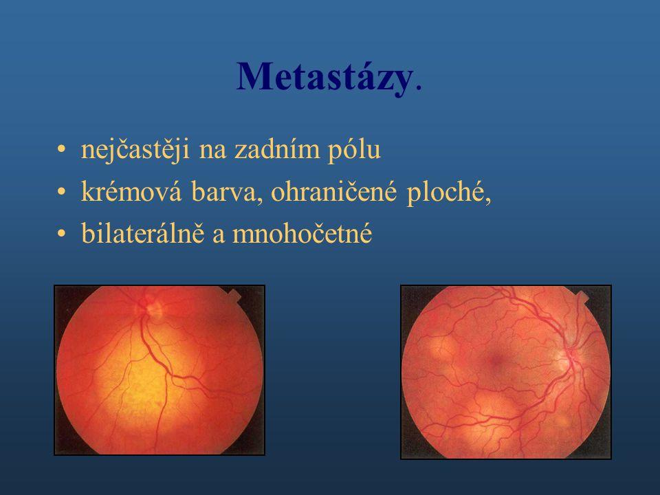 Metastázy. nejčastěji na zadním pólu krémová barva, ohraničené ploché, bilaterálně a mnohočetné