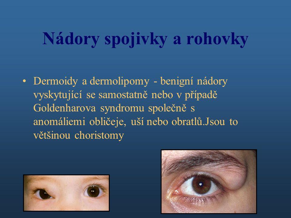 Nádory spojivky a rohovky Dermoidy a dermolipomy - benigní nádory vyskytující se samostatně nebo v případě Goldenharova syndromu společně s anomáliemi obličeje, uší nebo obratlů.Jsou to většinou choristomy