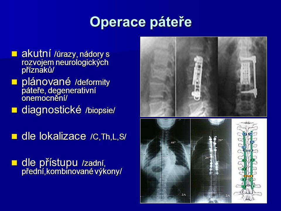 Operace páteře akutní /úrazy, nádory s rozvojem neurologických příznaků/ akutní /úrazy, nádory s rozvojem neurologických příznaků/ plánované /deformit