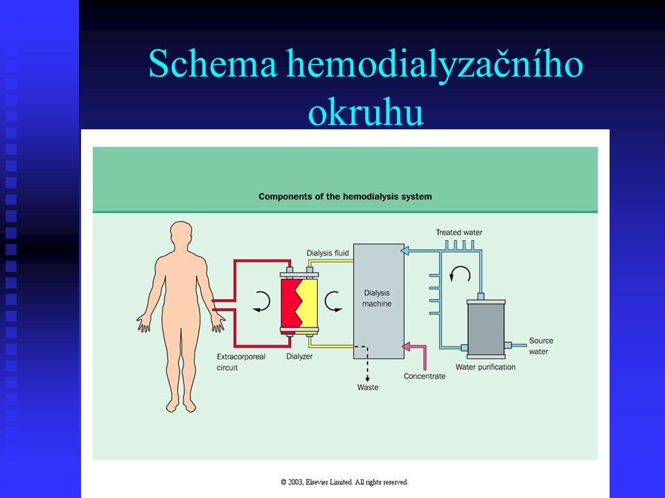 Schema hemodialyzačního okruhu