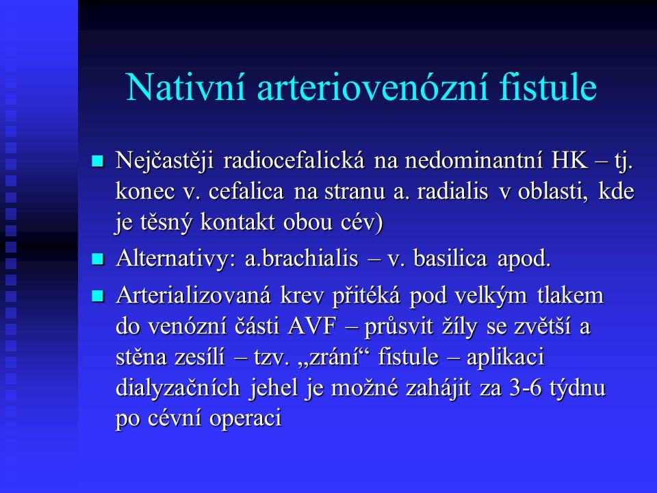 Nativní arteriovenózní fistule Nejčastěji radiocefalická na nedominantní HK – tj. konec v. cefalica na stranu a. radialis v oblasti, kde je těsný kont