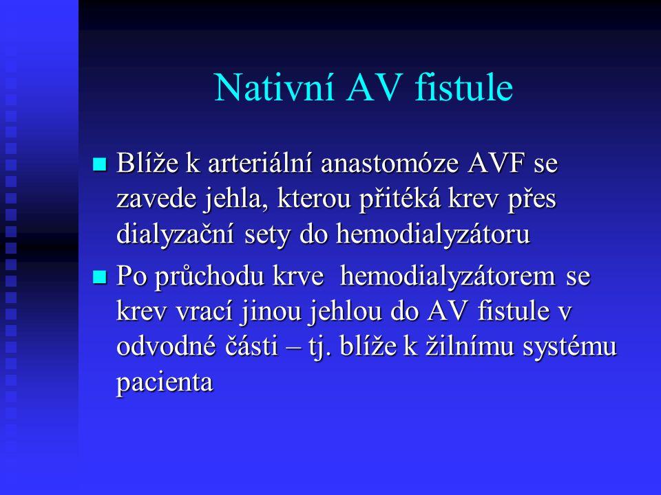 Nativní AV fistule Blíže k arteriální anastomóze AVF se zavede jehla, kterou přitéká krev přes dialyzační sety do hemodialyzátoru Blíže k arteriální a