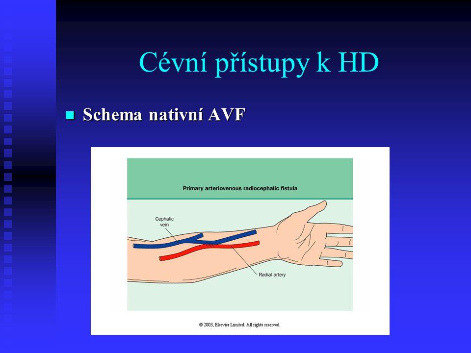 Cévní přístupy k HD Schema nativní AVF Schema nativní AVF