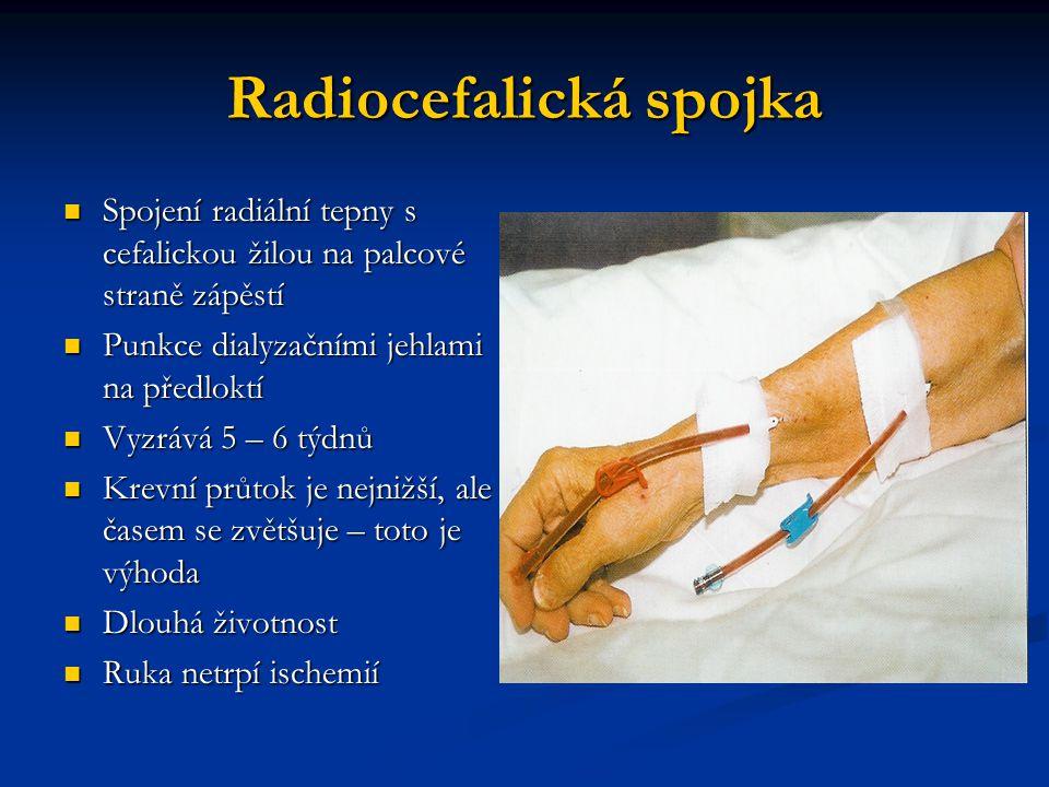 Radiocefalická spojka Spojení radiální tepny s cefalickou žilou na palcové straně zápěstí Spojení radiální tepny s cefalickou žilou na palcové straně