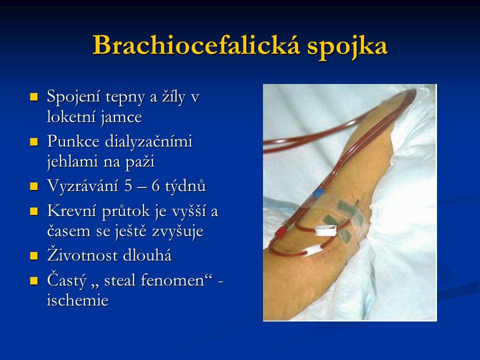 Brachiocefalická spojka Spojení tepny a žíly v loketní jamce Spojení tepny a žíly v loketní jamce Punkce dialyzačními jehlami na paži Punkce dialyzačn