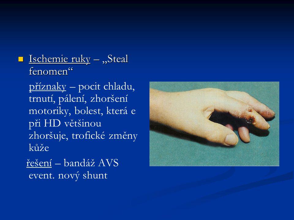 """Ischemie ruky – """"Steal fenomen"""" Ischemie ruky – """"Steal fenomen"""" příznaky – pocit chladu, trnutí, pálení, zhoršení motoriky, bolest, která e při HD vět"""