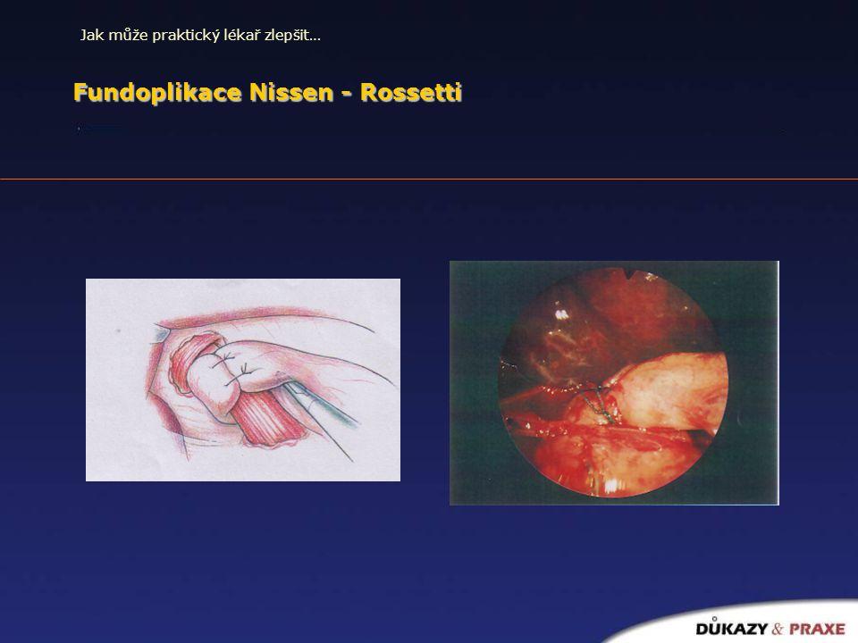 Jak může praktický lékař zlepšit… Fundoplikace Nissen - Rossetti