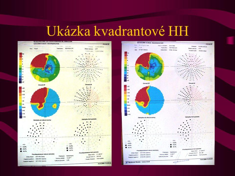 Ukázka kvadrantové HH