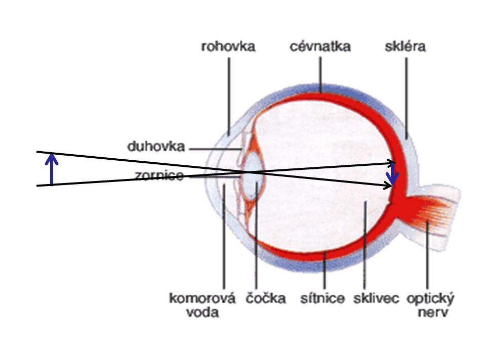 Akomodace oka (změna tvaru čočky) Zdravé oko pozoruje ostře předměty mezi tzv.