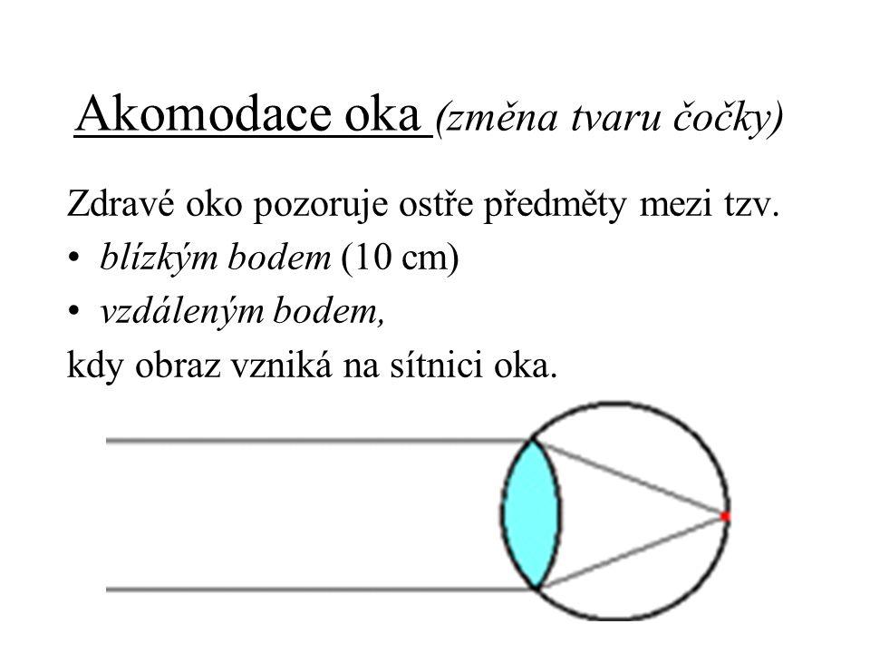 Akomodace oka (změna tvaru čočky) Zdravé oko pozoruje ostře předměty mezi tzv. blízkým bodem (10 cm) vzdáleným bodem, kdy obraz vzniká na sítnici oka.