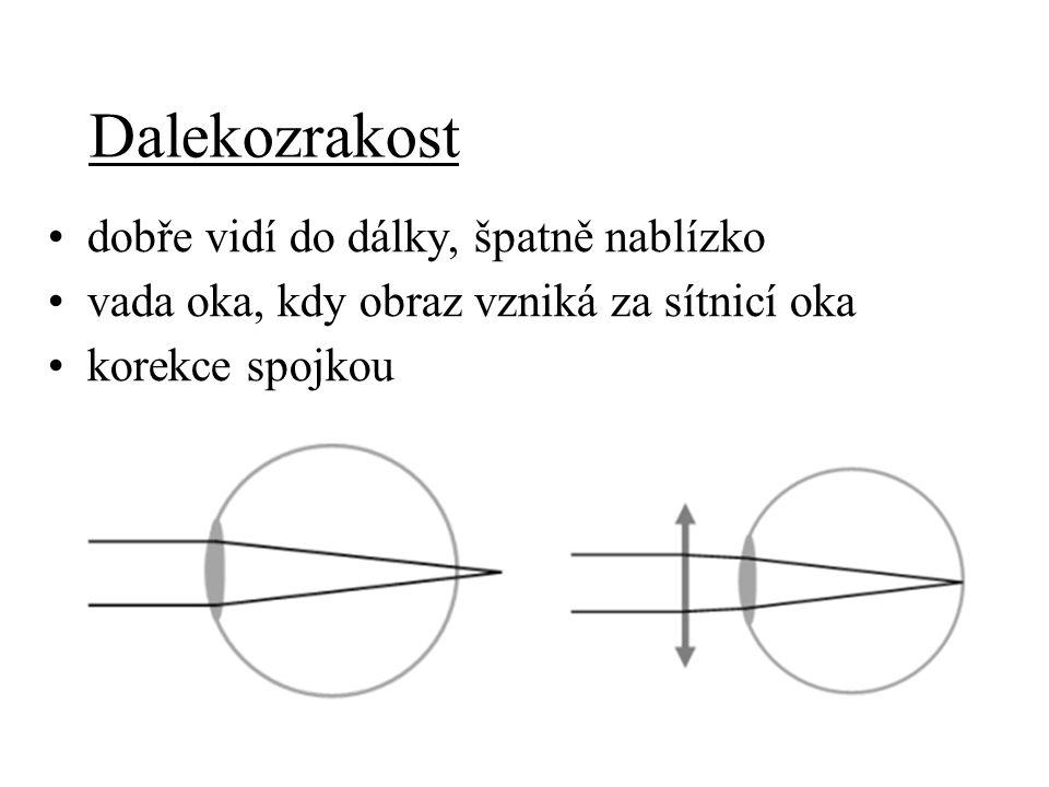 Zorný úhel - ω úhel, pod kterým oko pozoruje předmět zdravé oko – 1´ (minuta) ω