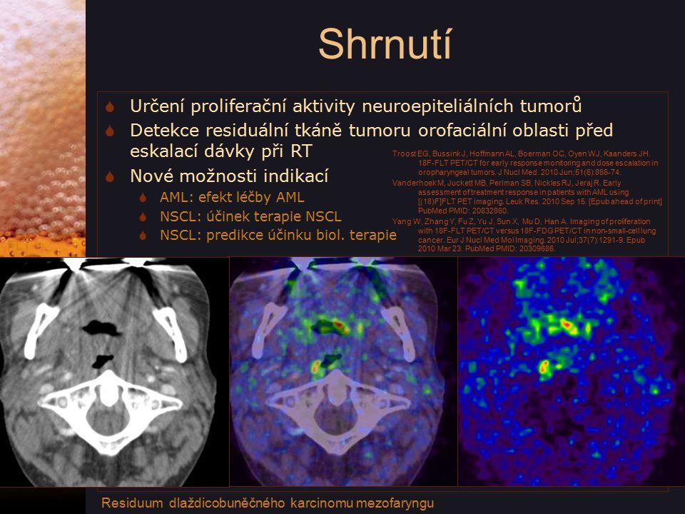 Shrnutí  Určení proliferační aktivity neuroepiteliálních tumorů  Detekce residuální tkáně tumoru orofaciální oblasti před eskalací dávky při RT  Nové možnosti indikací  AML: efekt léčby AML  NSCL: účinek terapie NSCL  NSCL: predikce účinku biol.