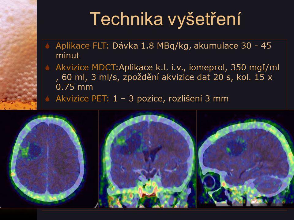Hodnocení  CT  Morfometrie ložisek  Sycení kontrastní látkou  Zazdění cév, postižení skeletu  PET  Buněčná proliferace