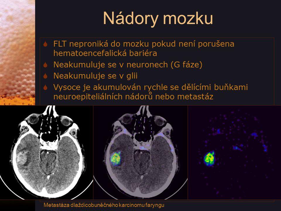 Nádory mozku  FLT neproniká do mozku pokud není porušena hematoencefalická bariéra  Neakumuluje se v neuronech (G fáze)  Neakumuluje se v glii  Vysoce je akumulován rychle se dělícími buňkami neuroepiteliálních nádorů nebo metastáz Metastáza dlaždicobuněčného karcinomu faryngu