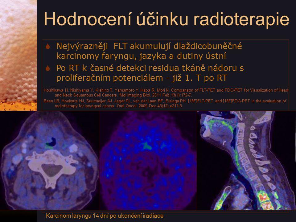 Hodnocení účinku radioterapie  Nejvýrazněji FLT akumulují dlaždicobuněčné karcinomy faryngu, jazyka a dutiny ústní  Po RT k časné detekci residua tkáně nádoru s proliferačním potenciálem - již 1.
