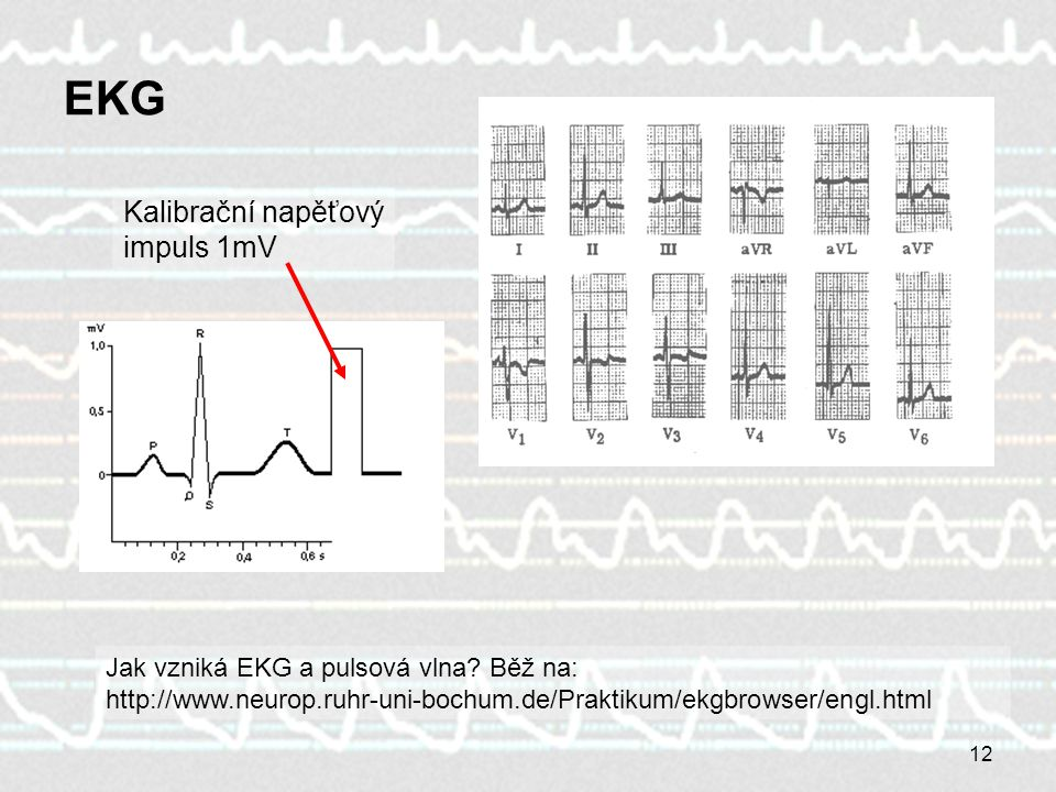 12 EKGEKG Kalibrační napěťový impuls 1mV Jak vzniká EKG a pulsová vlna? Běž na: http://www.neurop.ruhr-uni-bochum.de/Praktikum/ekgbrowser/engl.html