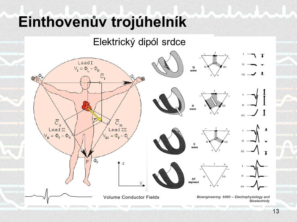 13 Einthovenův trojúhelník Elektrický dipól srdce