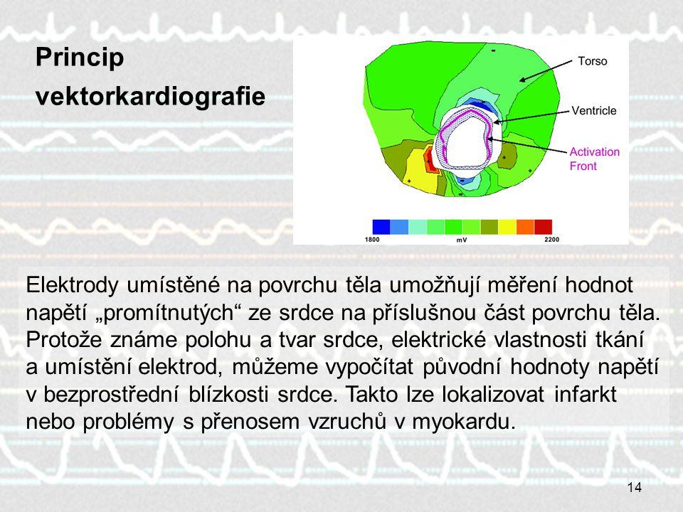 """14 Princip vektorkardiografie Elektrody umístěné na povrchu těla umožňují měření hodnot napětí """"promítnutých ze srdce na příslušnou část povrchu těla."""