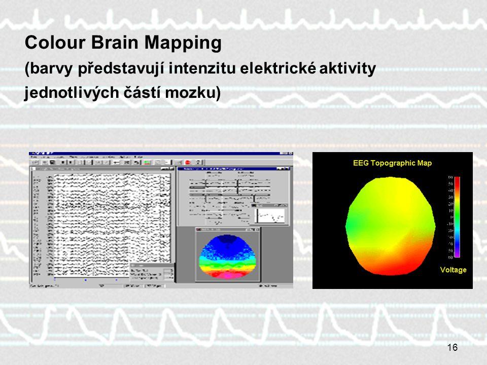 16 Colour Brain Mapping (barvy představují intenzitu elektrické aktivity jednotlivých částí mozku)