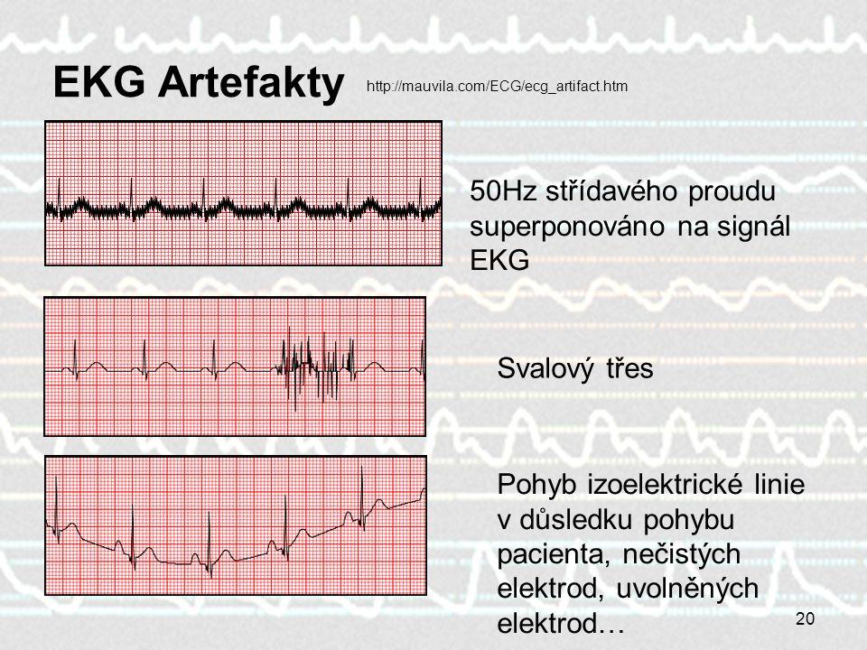 20 EKG Artefakty 50Hz střídavého proudu superponováno na signál EKG Svalový třes Pohyb izoelektrické linie v důsledku pohybu pacienta, nečistých elekt