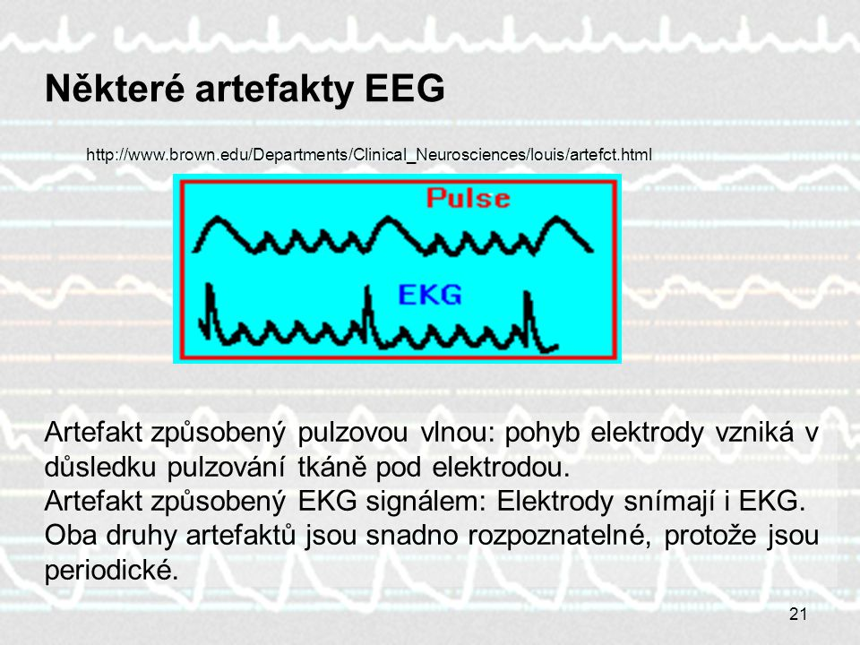 21 Některé artefakty EEG Artefakt způsobený pulzovou vlnou: pohyb elektrody vzniká v důsledku pulzování tkáně pod elektrodou. Artefakt způsobený EKG s