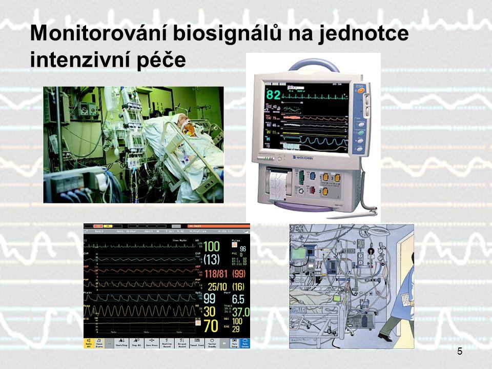 5 Monitorování biosignálů na jednotce intenzivní péče