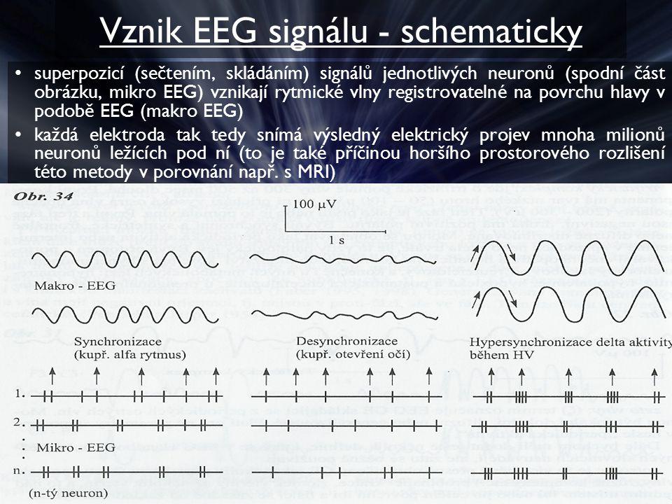 Vznik EEG signálu - schematicky superpozicí (sečtením, skládáním) signálů jednotlivých neuronů (spodní část obrázku, mikro EEG) vznikají rytmické vlny registrovatelné na povrchu hlavy v podobě EEG (makro EEG) každá elektroda tak tedy snímá výsledný elektrický projev mnoha milionů neuronů ležících pod ní (to je také příčinou horšího prostorového rozlišení této metody v porovnání např.