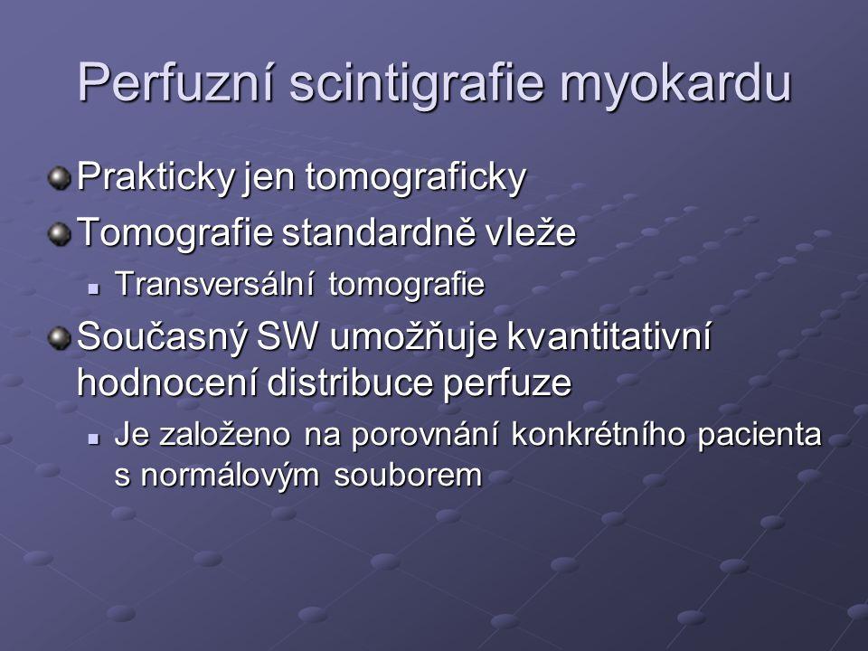Perfuzní scintigrafie myokardu Prakticky jen tomograficky Tomografie standardně vleže Transversální tomografie Transversální tomografie Současný SW um