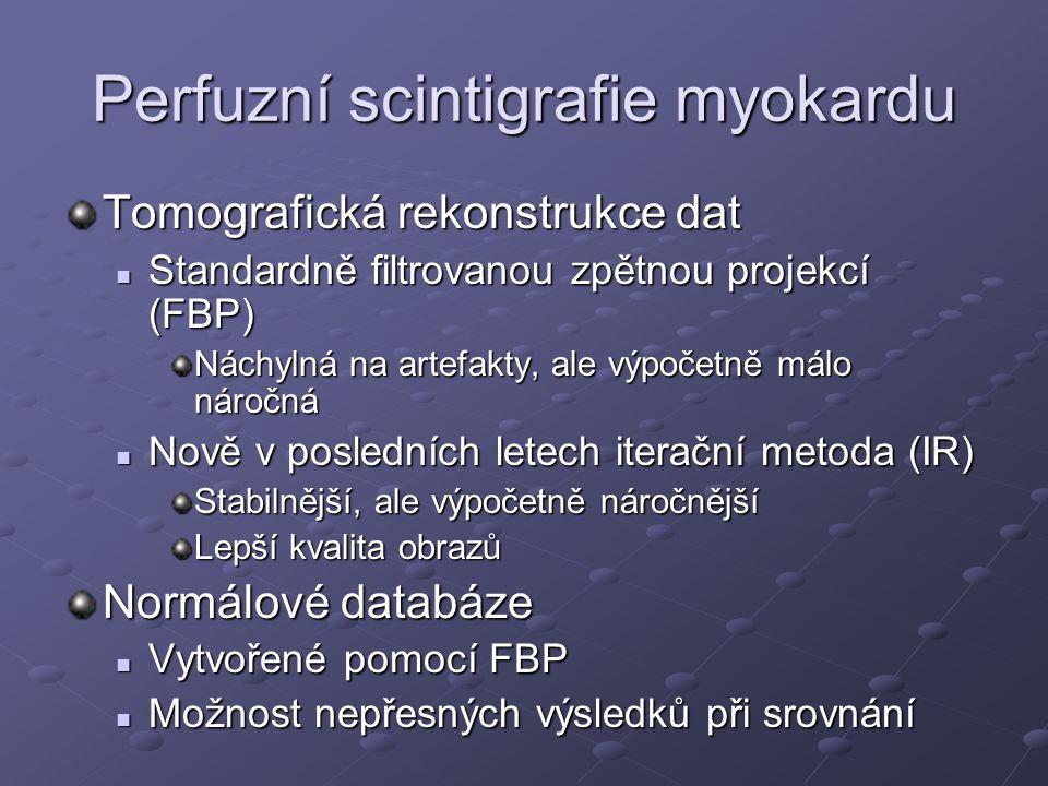 Perfuzní scintigrafie myokardu Tomografická rekonstrukce dat Standardně filtrovanou zpětnou projekcí (FBP) Standardně filtrovanou zpětnou projekcí (FB