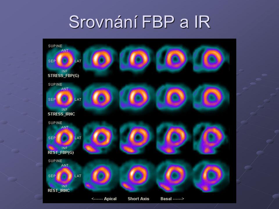 Srovnání FBP a IR