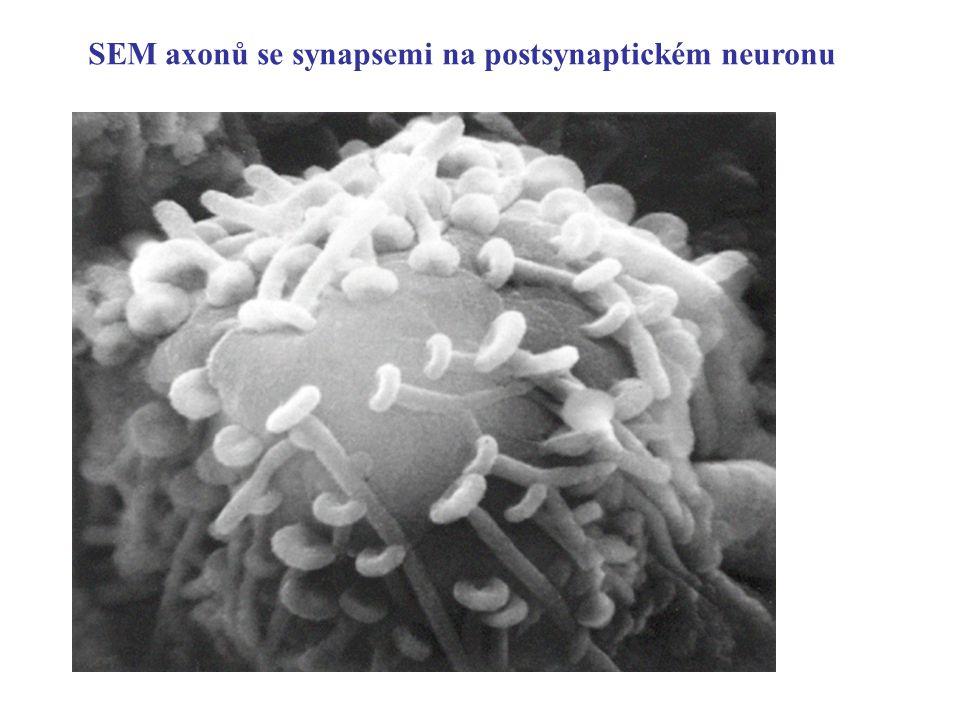SEM axonů se synapsemi na postsynaptickém neuronu