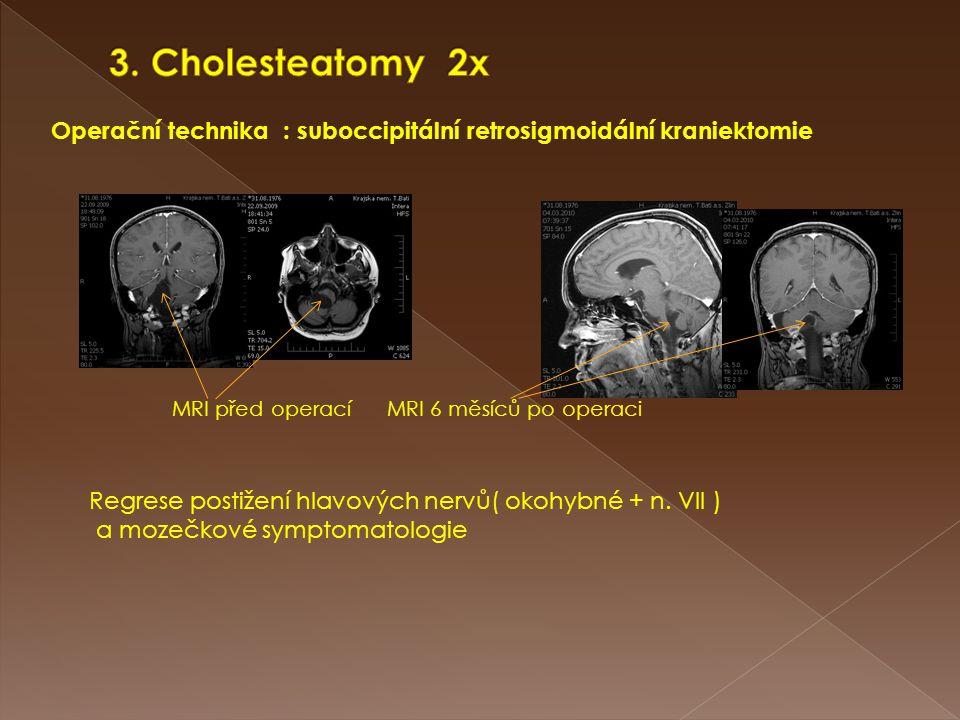 Operační technika : suboccipitální retrosigmoidální kraniektomie MRI před operací MRI 6 měsíců po operaci Regrese postižení hlavových nervů( okohybné