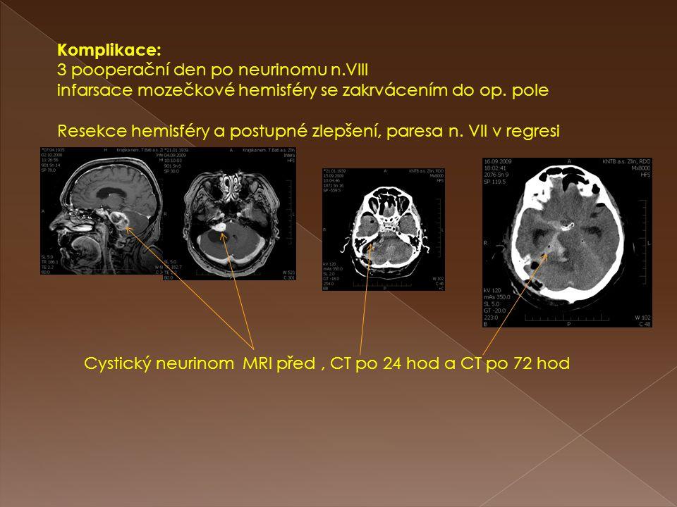 Komplikace: 3 pooperační den po neurinomu n.VIII infarsace mozečkové hemisféry se zakrvácením do op. pole Resekce hemisféry a postupné zlepšení, pares