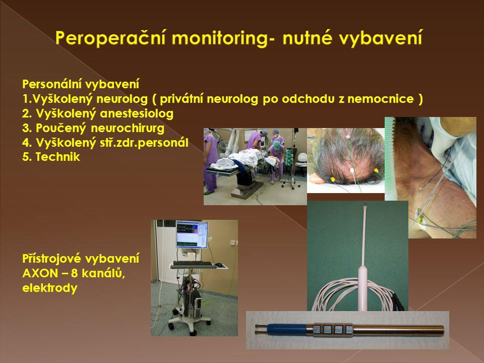 Personální vybavení 1.Vyškolený neurolog ( privátní neurolog po odchodu z nemocnice ) 2. Vyškolený anestesiolog 3. Poučený neurochirurg 4. Vyškolený s