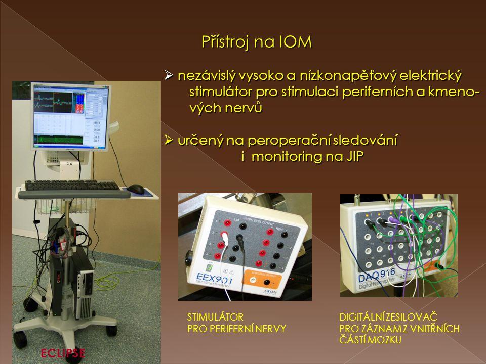 Přístroj na IOM Přístroj na IOM  nezávislý vysoko a nízkonapěťový elektrický stimulátor pro stimulaci periferních a kmeno- stimulátor pro stimulaci p