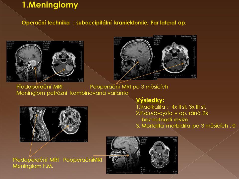 Předoperační MRI Pooperační MRI po 3 měsících Meningiom petrózní kombinovaná varianta Předoperační MRI PooperačníMRI Meningiom F.M. Výsledky: 1.Radika