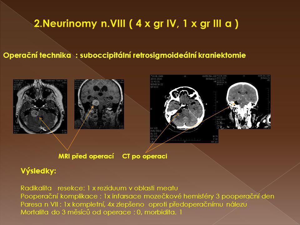 Operační technika : suboccipitální retrosigmoideální kraniektomie MRI před operací CT po operaci Výsledky: Radikalita resekce: 1 x reziduum v oblasti