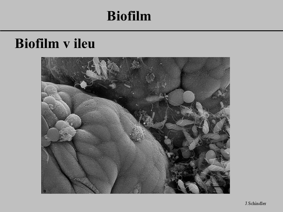 Biofilm J.Schindler Biofilm v ileu