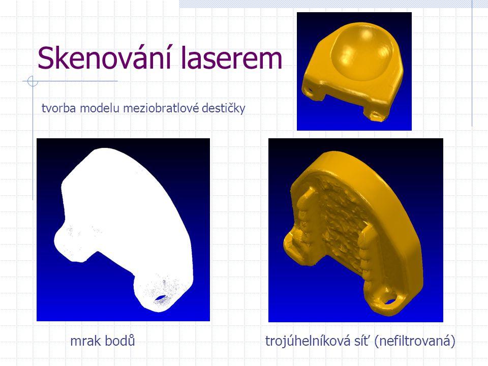 Skenování laserem mrak bodůtrojúhelníková síť (nefiltrovaná) tvorba modelu meziobratlové destičky