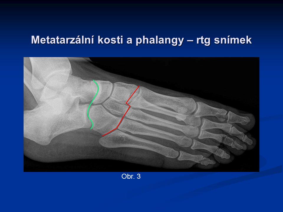Obr. 3 Metatarzální kosti a phalangy – rtg snímek